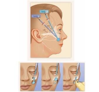 面部提升术是什么?埋线适合那些人?