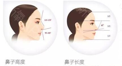 为什么一定要做鼻综合?